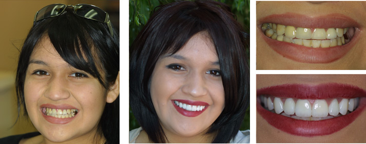 Third Coast Dental Before and After